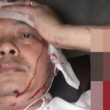 """""""Sếp"""" Tập đoàn Trung Nguyên bị đánh chảy máu đầu nhập viện"""