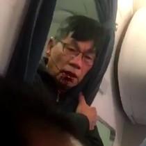 Hành khách bị lôi khỏi máy bay sẽ được bồi thường hàng triệu USD?