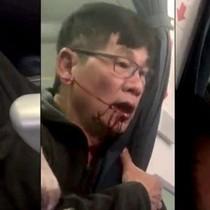 Người gốc Việt bị lôi khỏi máy bay của United Airlines