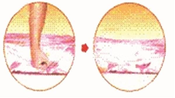 Nệm xẹp (lún,trũng), không đàn hồi khi không còn lực tác động lên nệm thì nệm vẫn bị xẹp (lún, trũng), không phục hồi được về hình dạng và kích thước ban đầu.