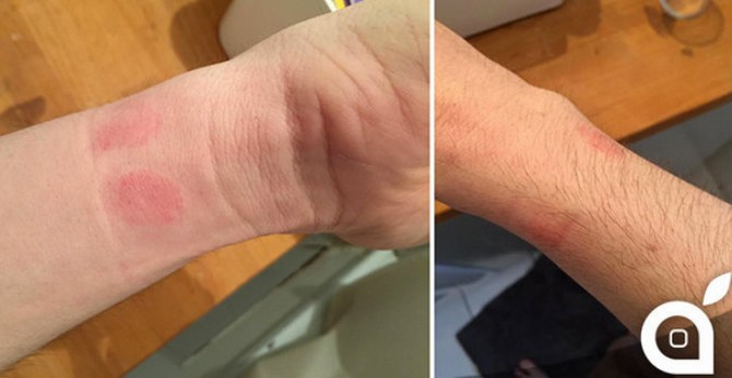 Apple Watch bị tố gây dị ứng da người dùng